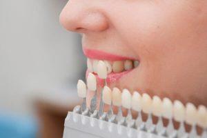 لمینت های دندانی