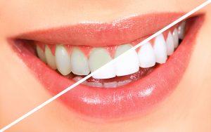 سفید کردن دندانها (بلیچینگ)